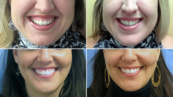 "Images of study subjects before, at left, and after receiving Botox treatments to correct their ""gummy smile,"" which was defined by the study as two or more millimeters of ""gingival exposure upon smiling.""Credit Aesthetic Surgery Journal"