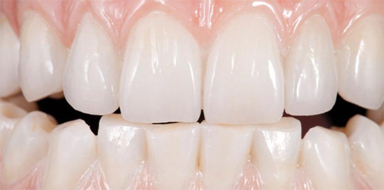 prettau teeth